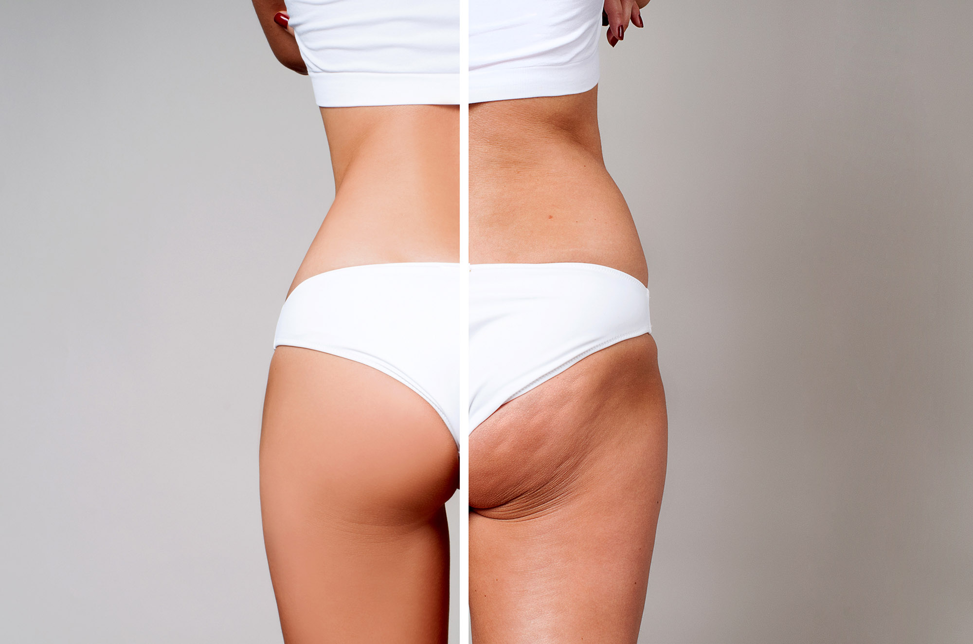 What to do About Cellulite |